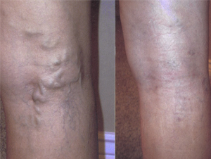 before-after-vein